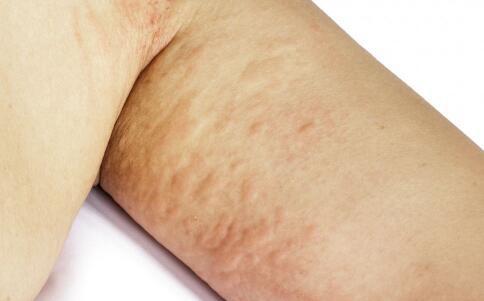 荨麻疹应该怎么护理?
